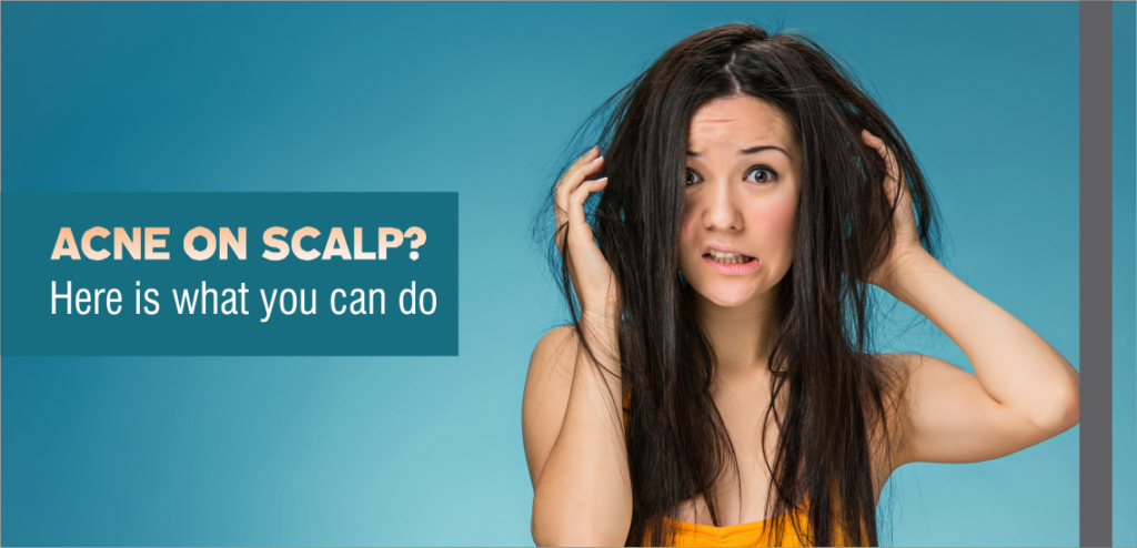 Acne on Scalp? Here is what you can do